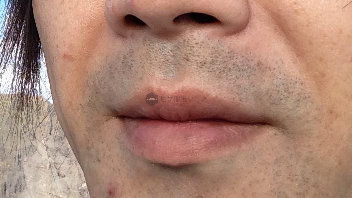 かつては僕も濃いヒゲに毎朝髭剃りの時間を費やしていた…