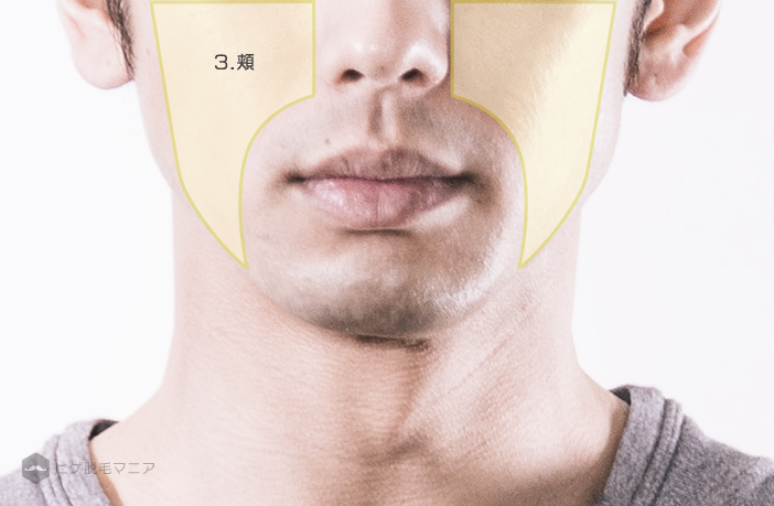 ヒゲ脱毛部位詳細:頬