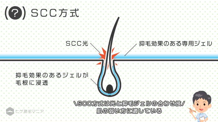 SCC方式は、光と抑毛ジェルの合わせ技