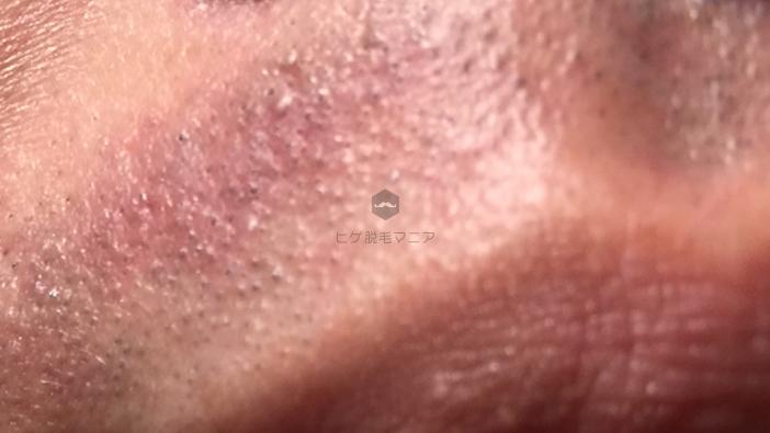 レーザー脱毛による毛嚢炎の例