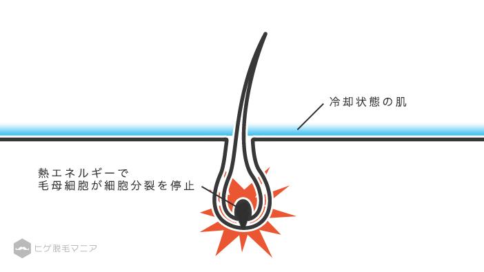 光の熱エネルギーによって毛母細胞が細胞分裂を停止する